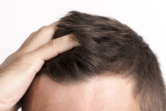 Excess Hair Fall