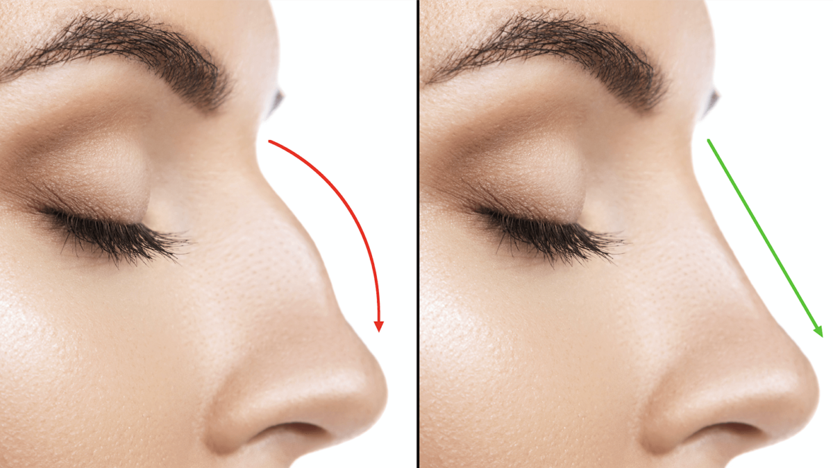 Pros and Cons of Non-Surgical Rhinoplasty
