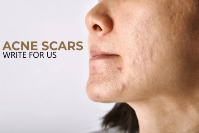 Acne Scars Write For Us